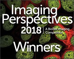 Imaging Competition Winners